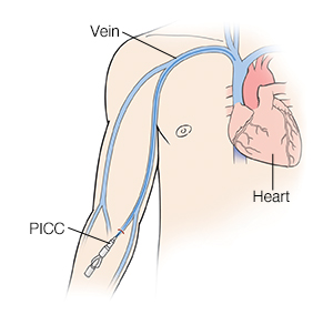 Front view of man showing heart and veins with catheter inserted in forearm (PICC).